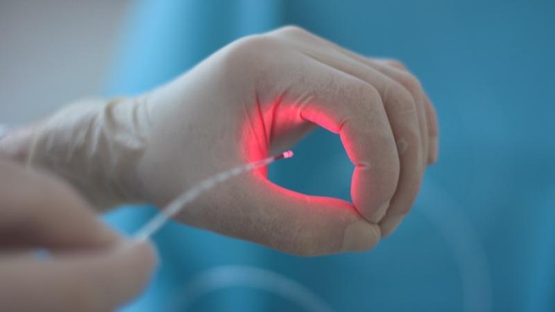 Лечение геморроя лазером: лазерная коагуляция геморроидальных узлов
