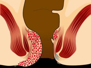 Удаление свища прямой кишки и реабилитационный период