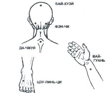 точки при снятии боли в области висков,темени
