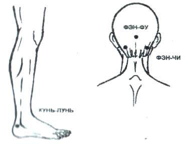 точки для снятия боли в затылке