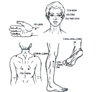 точки при снятии боли при мигрени