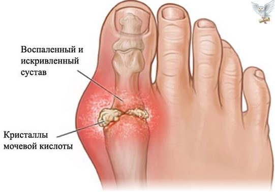 вальгусная деформация первого пальца ног
