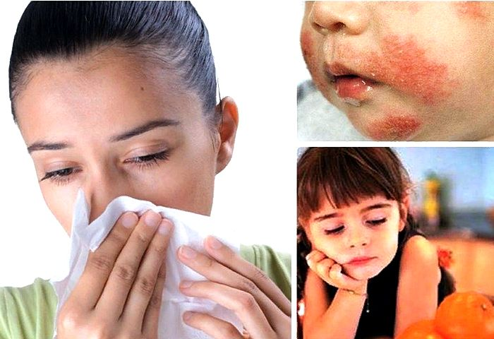 разные виды аллергии