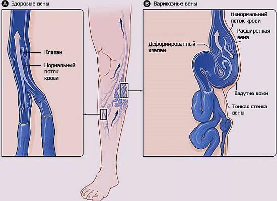 изменение в венах при варикозе, варикозное расширение вен лечение народными средствами, диета
