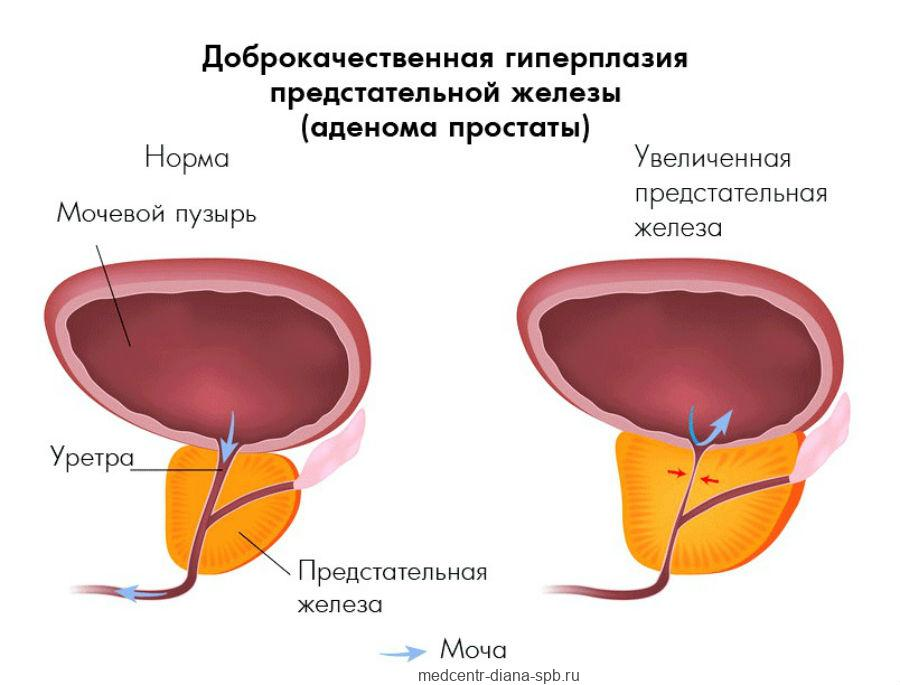 Доброкачественная гиперплазия предстательной железы
