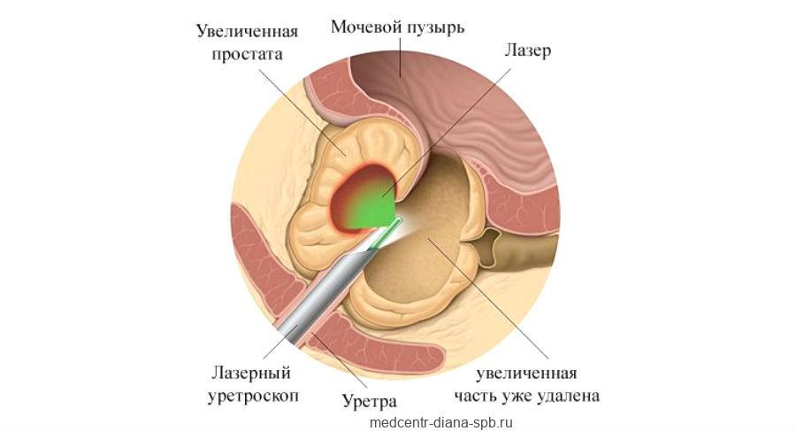 Лазерное лечение доброкачественной гиперплазии простаты