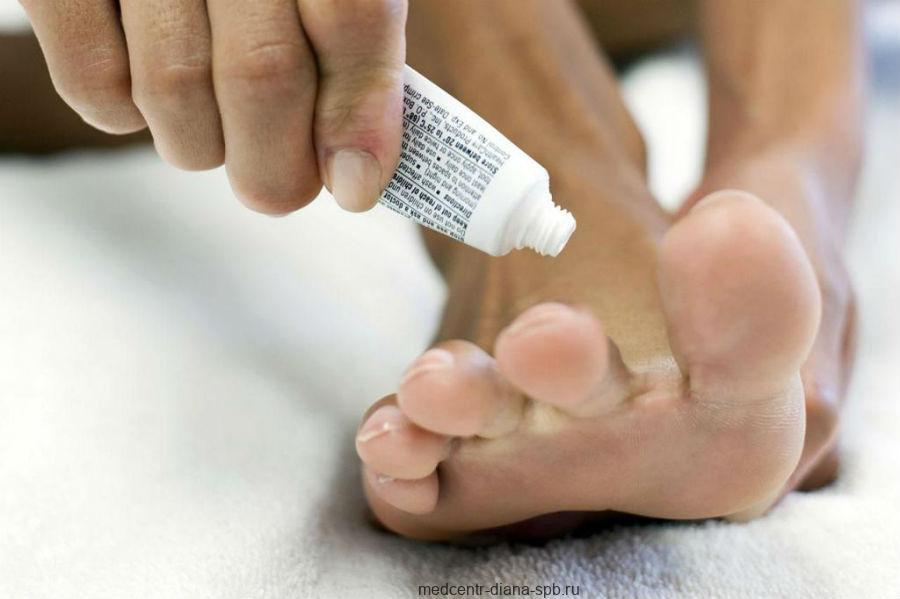 Противогрибковые препараты местного действия