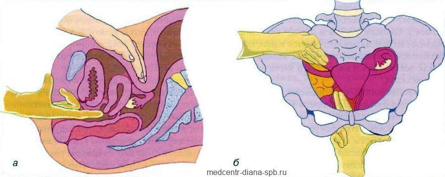 Внутренний гинекологический осмотр (бимануальный осмотр)