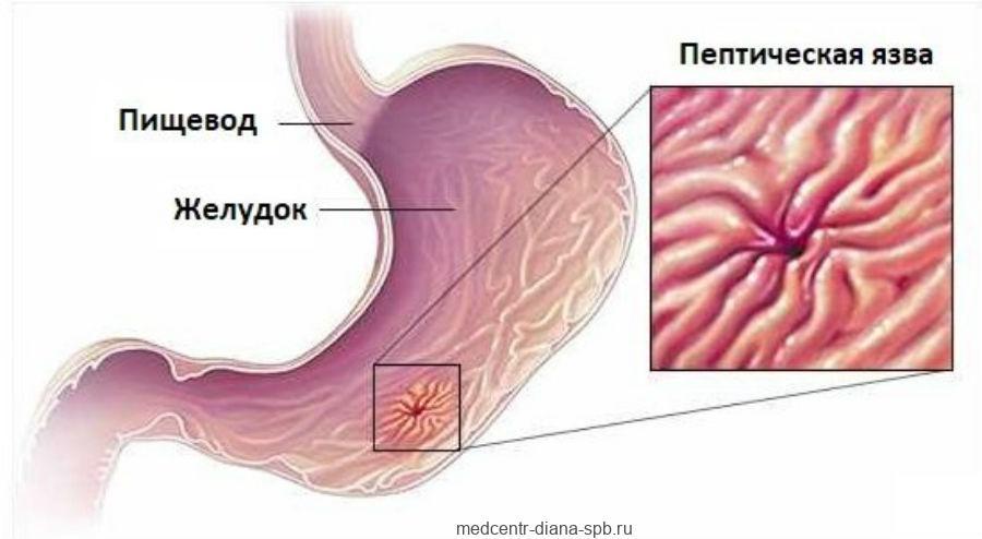 Пептическая язва