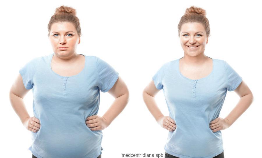 Снижение массы тела при ожирении