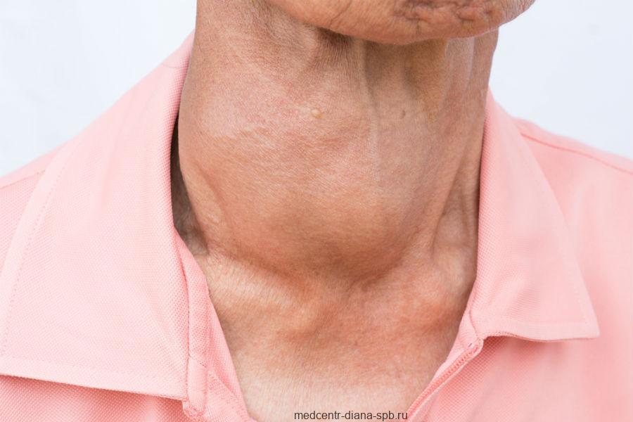Хашимото - хронический лимфоцитарный тиреоидит
