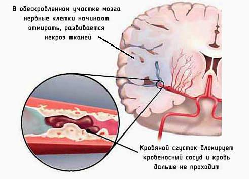 проявление ишемического инсульта, восстановление после инсульта