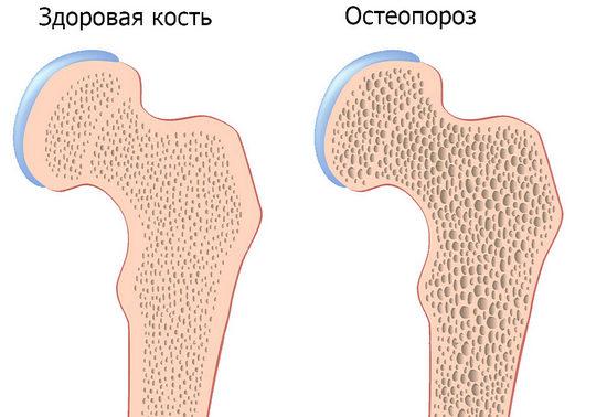 остеопороз, профилактика остеопороза