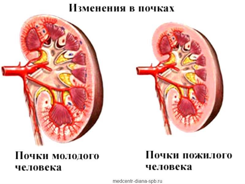 Старческая атрофия почек - уменьшение веса и размеров органа
