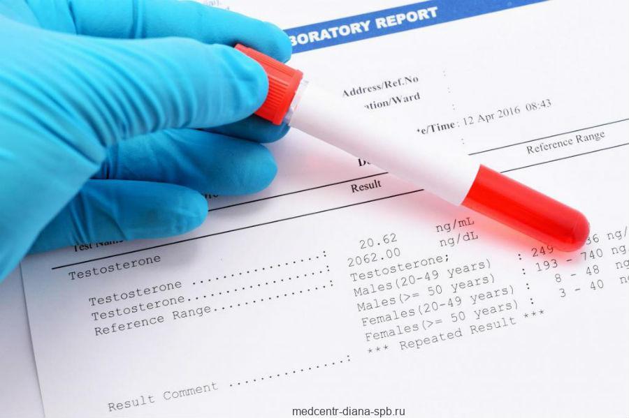 Тест на гормоны для диагностики андропаузы