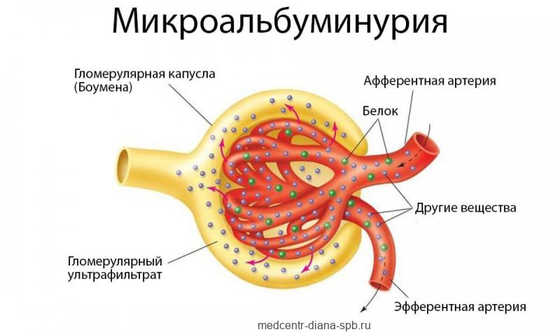 Микроальбуминурия