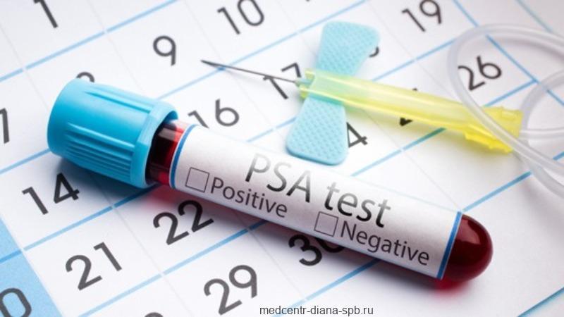 Концентрация PSA (простатический специфический антиген) в сыворотке крови