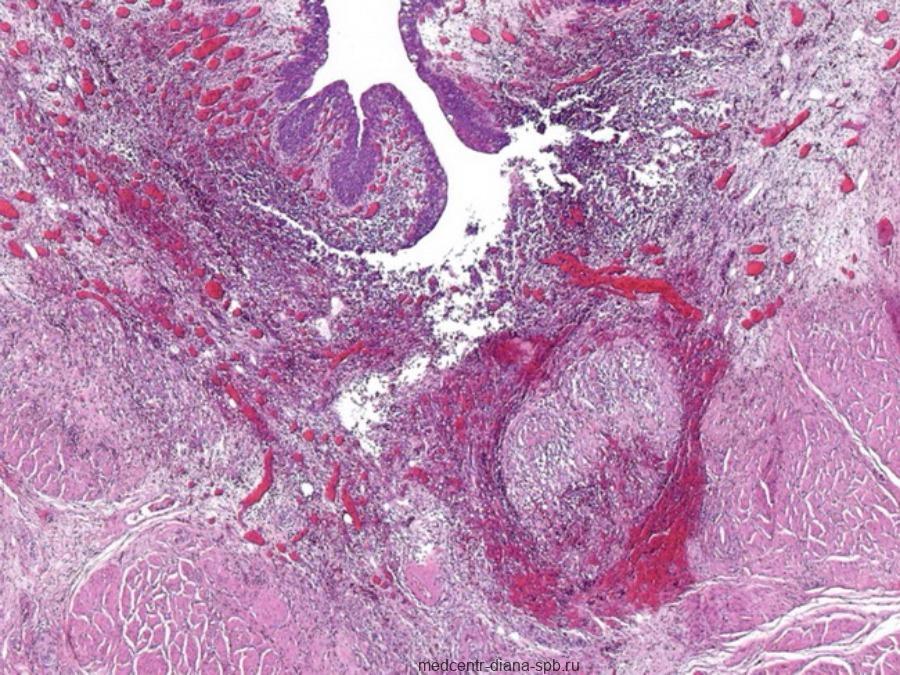 Микроскопическое изображение интерстициального цистита