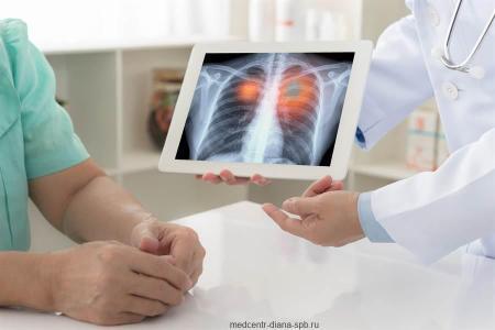 Риски развития онкологии