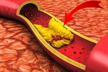 Тромбоз печеночной вены (синдром Бадда-Киари)